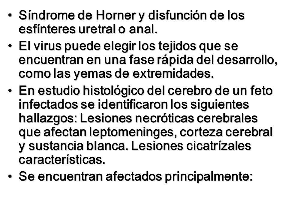 Síndrome de Horner y disfunción de los esfínteres uretral o anal.Síndrome de Horner y disfunción de los esfínteres uretral o anal. El virus puede eleg