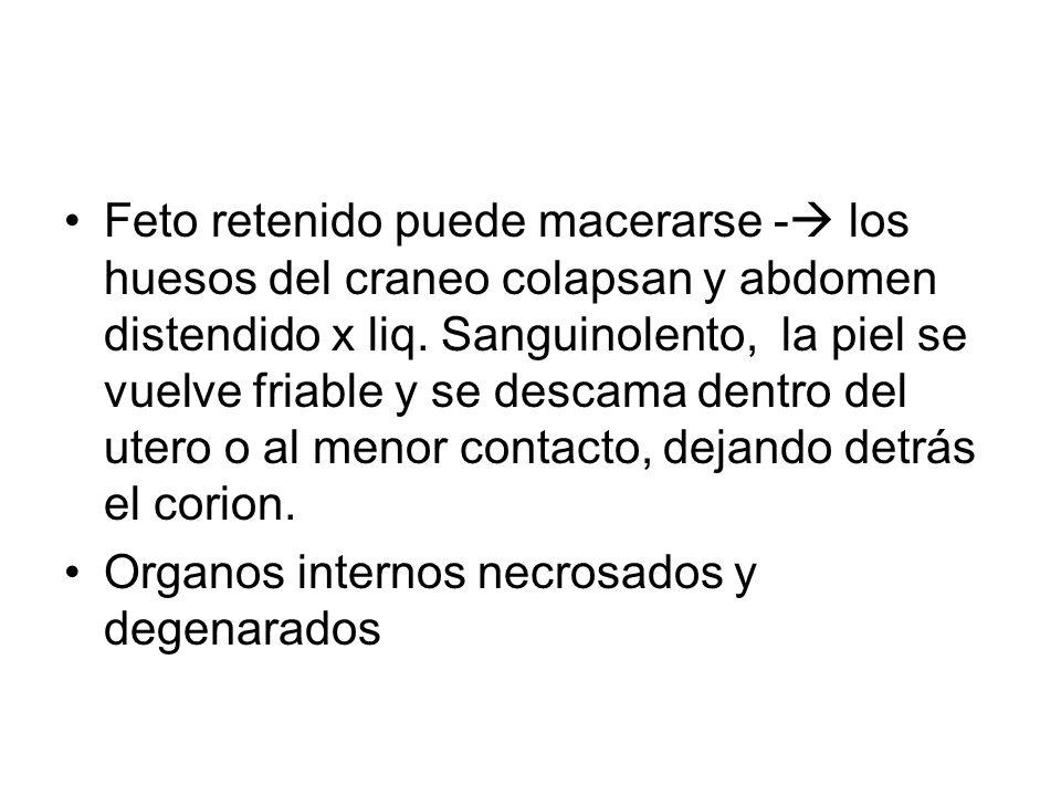 Feto retenido puede macerarse - los huesos del craneo colapsan y abdomen distendido x liq. Sanguinolento, la piel se vuelve friable y se descama dentr