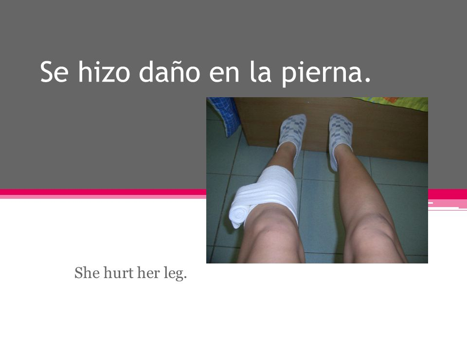 Se hizo daño en la pierna. She hurt her leg.