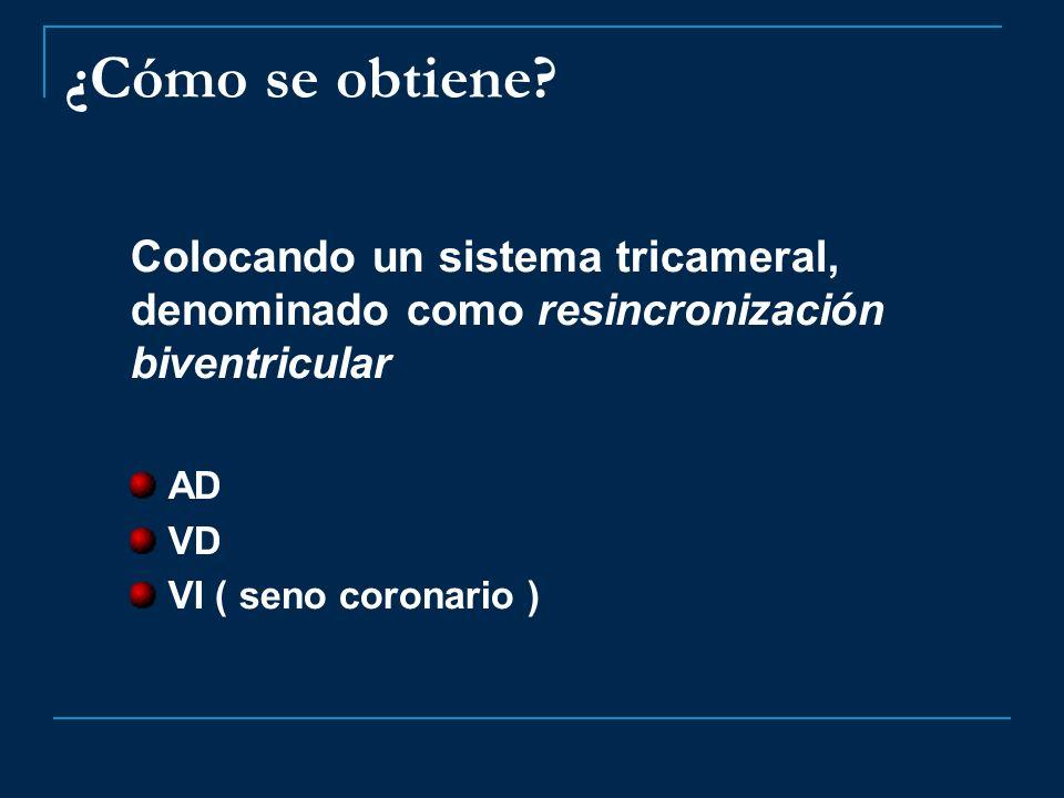 ¿Cómo se obtiene? Colocando un sistema tricameral, denominado como resincronización biventricular AD VD VI ( seno coronario )