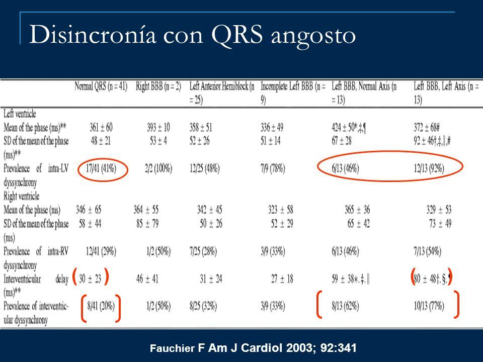Disincronía con QRS angosto Fauchier F Am J Cardiol 2003; 92:341 ( )