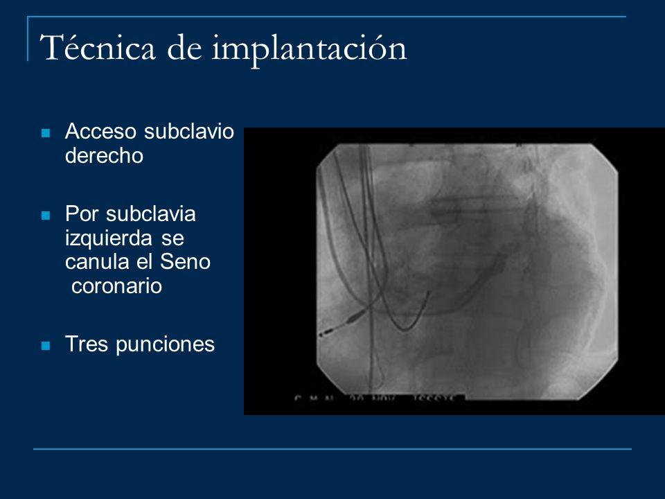 Técnica de implantación Acceso subclavio derecho Por subclavia izquierda se canula el Seno coronario Tres punciones