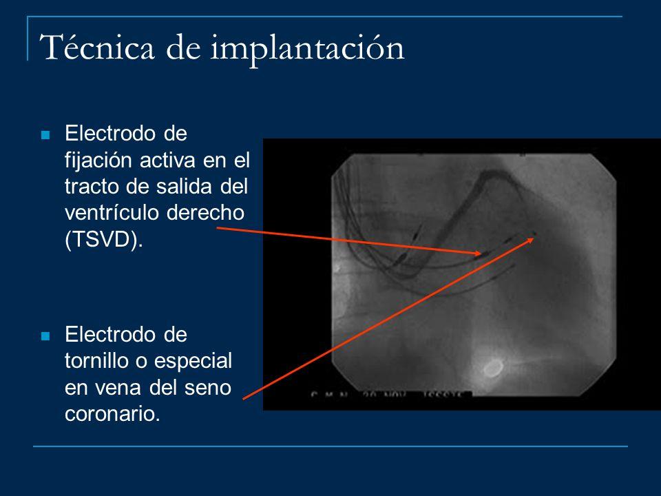 Técnica de implantación Electrodo de fijación activa en el tracto de salida del ventrículo derecho (TSVD). Electrodo de tornillo o especial en vena de