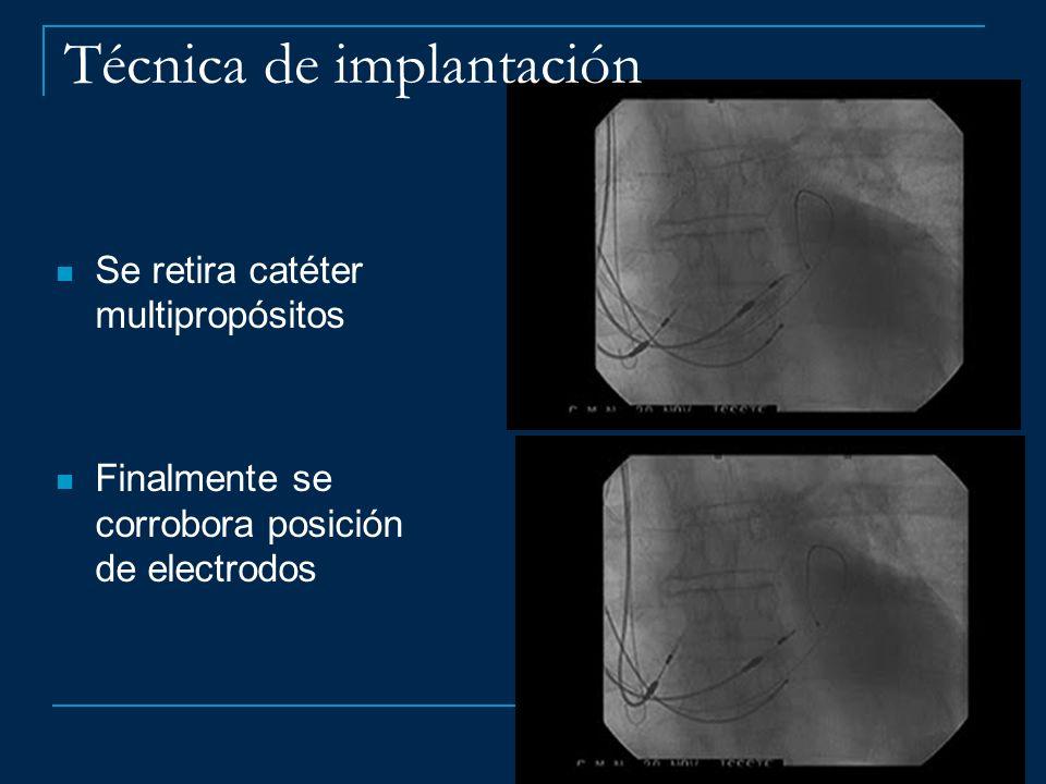 Técnica de implantación Se retira catéter multipropósitos Finalmente se corrobora posición de electrodos