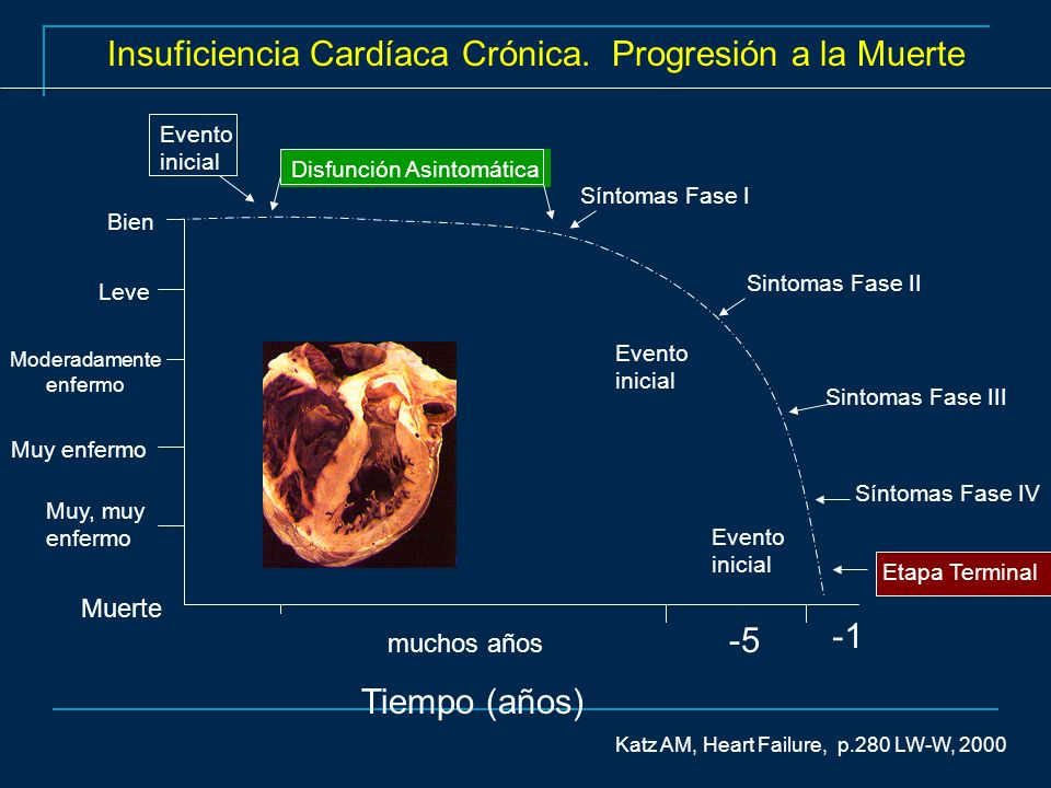 Doppler Tisular Normal vs Disincronía A A B B C C D D Bax JJ, MD STATE-OF-THE-ART PAPER Echocardiographic Evaluation of Cardiac Resynchronization Therapy: Ready for Routine Clinical Use.