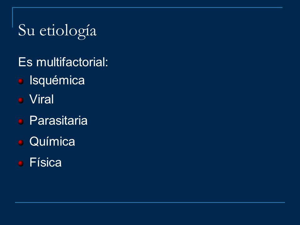 Su etiología Es multifactorial: Isquémica Viral Parasitaria Química Física