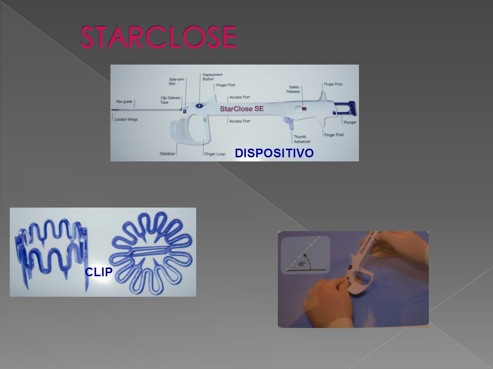 El sistema StarClose consta de un introductor, un aplicador y una grapa de nitinol (aleación de niquel-titanio con memoria térmica).