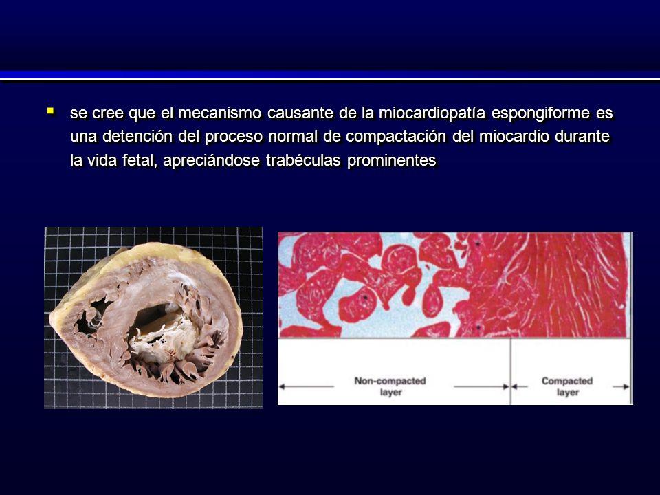 se cree que el mecanismo causante de la miocardiopatía espongiforme es una detención del proceso normal de compactación del miocardio durante la vida fetal, apreciándose trabéculas prominentes se cree que el mecanismo causante de la miocardiopatía espongiforme es una detención del proceso normal de compactación del miocardio durante la vida fetal, apreciándose trabéculas prominentes