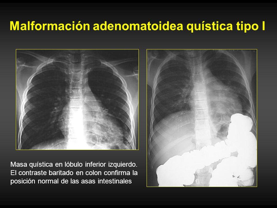 Malformación adenomatoidea quística tipo I Masa quística en lóbulo inferior izquierdo. El contraste baritado en colon confirma la posición normal de l