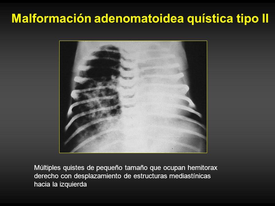 Malformación adenomatoidea quística tipo II Múltiples quistes de pequeño tamaño que ocupan hemitorax derecho con desplazamiento de estructuras mediast