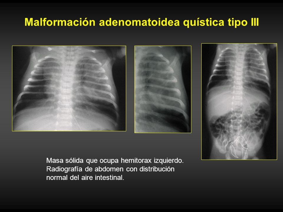 Malformación adenomatoidea quística tipo III Masa sólida que ocupa hemitorax izquierdo. Radiografía de abdomen con distribución normal del aire intest