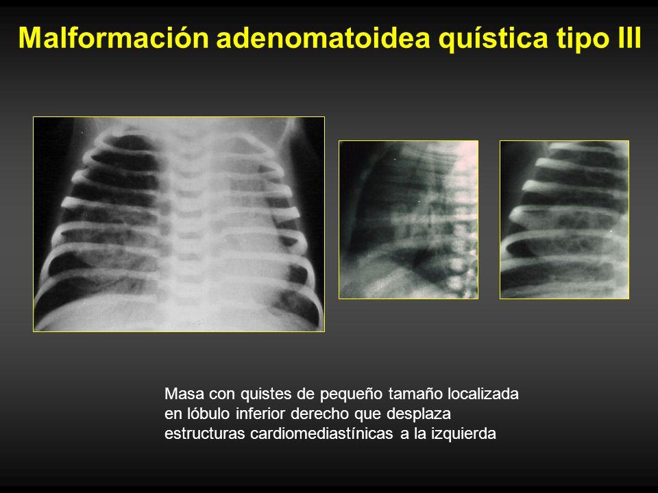 Malformación adenomatoidea quística tipo III Masa con quistes de pequeño tamaño localizada en lóbulo inferior derecho que desplaza estructuras cardiom