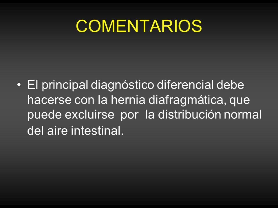 COMENTARIOS El principal diagnóstico diferencial debe hacerse con la hernia diafragmática, que puede excluirse por la distribución normal del aire int