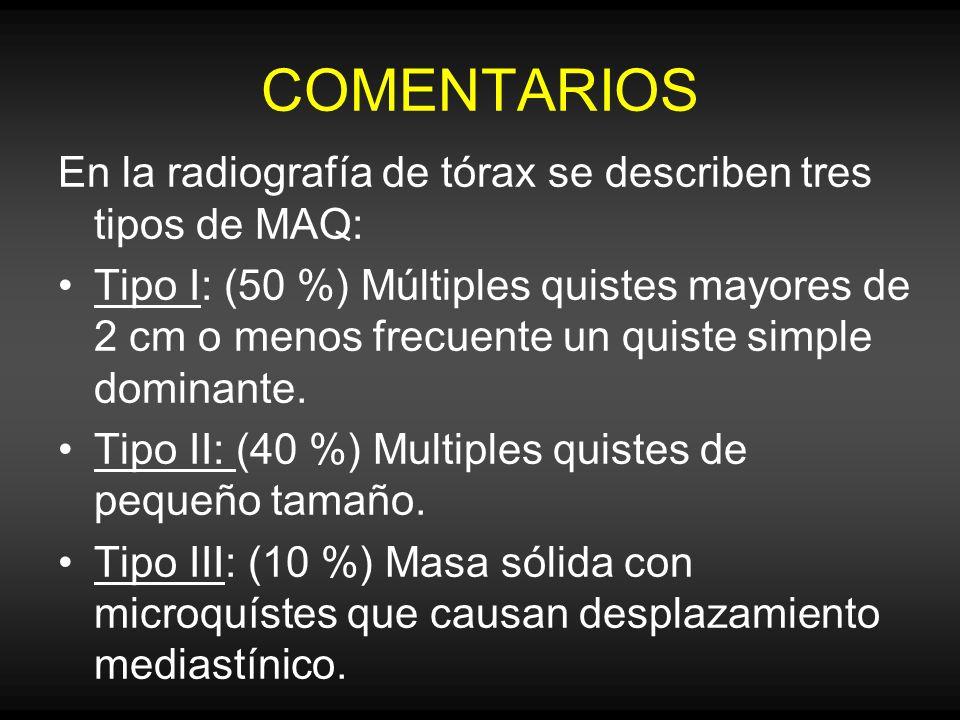 COMENTARIOS En la radiografía de tórax se describen tres tipos de MAQ: Tipo I: (50 %) Múltiples quistes mayores de 2 cm o menos frecuente un quiste si