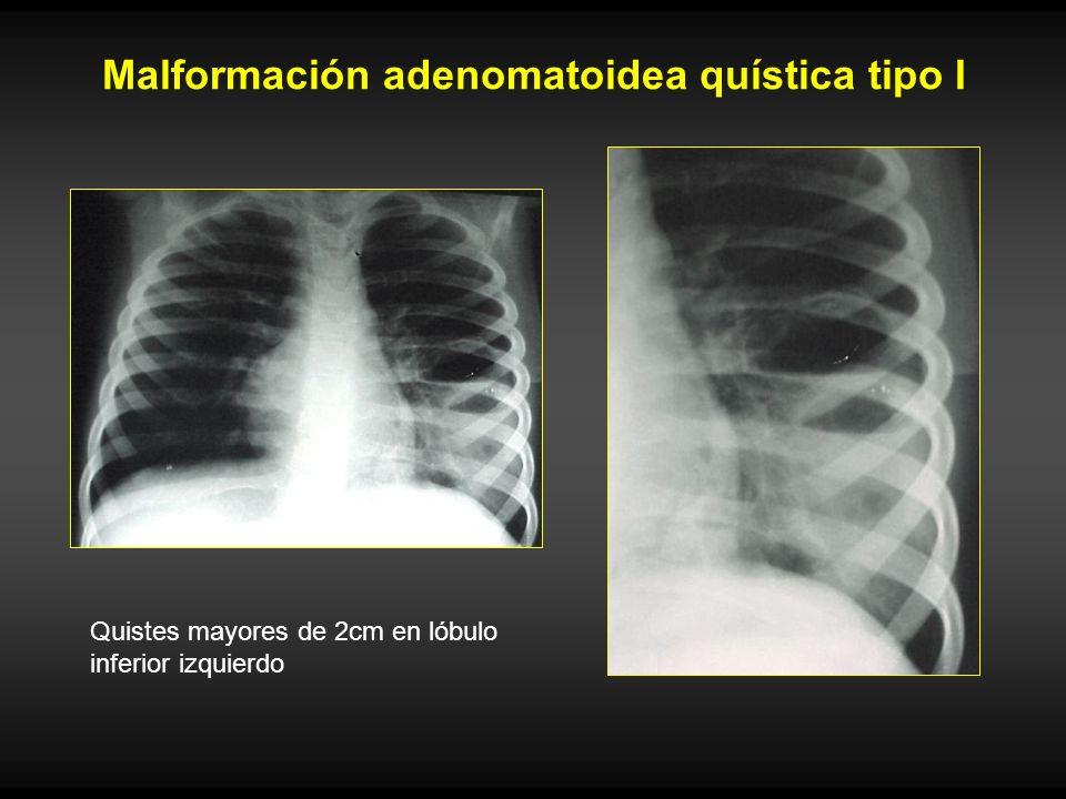 Malformación adenomatoidea quística tipo I Quistes mayores de 2cm en lóbulo inferior izquierdo