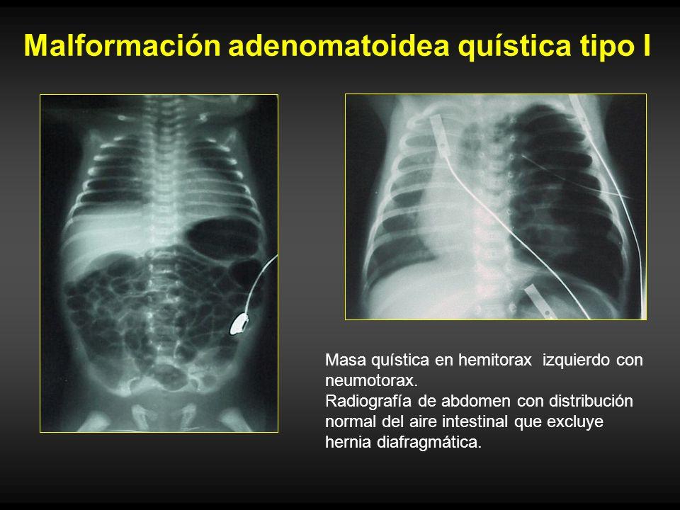 Malformación adenomatoidea quística tipo I Masa quística en hemitorax izquierdo con neumotorax. Radiografía de abdomen con distribución normal del air