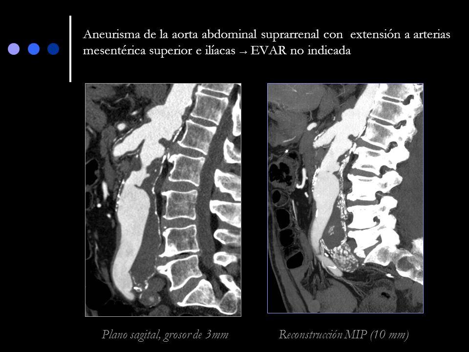 Aneurisma de la aorta abdominal suprarrenal con extensión a arterias mesentérica superior e ilíacas EVAR no indicada Plano sagital, grosor de 3mm Reco