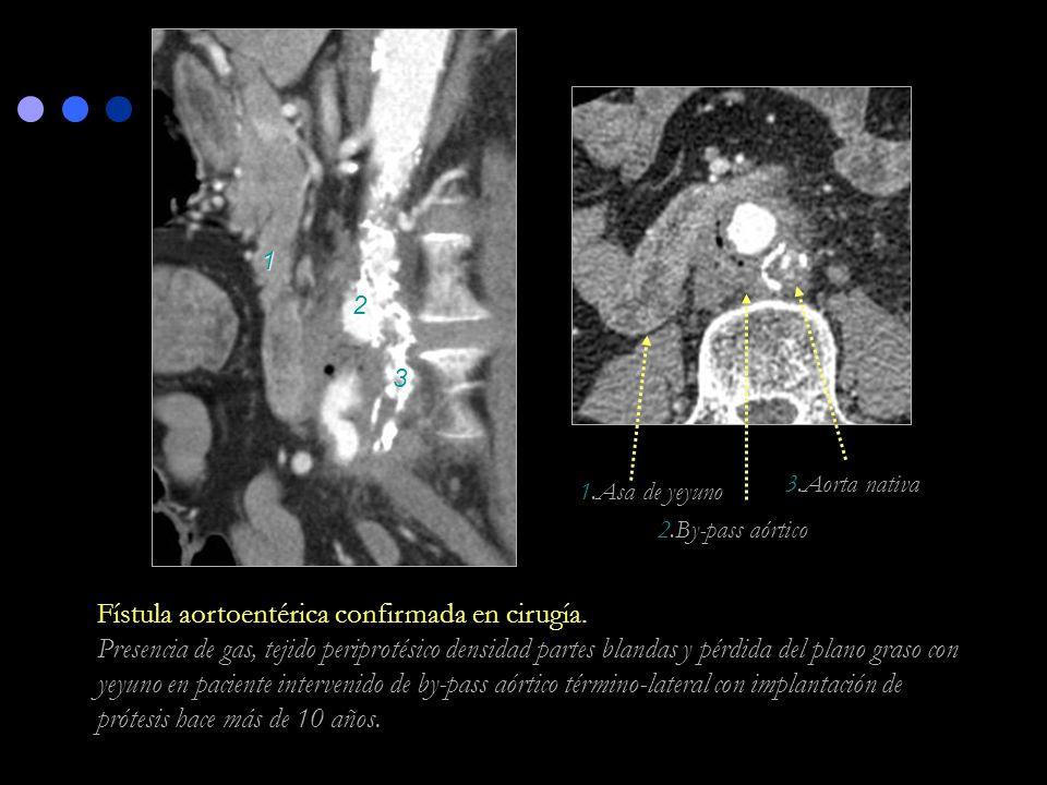 3.Aorta nativa 2.By-pass aórtico 1.Asa de yeyuno Fístula aortoentérica confirmada en cirugía. Presencia de gas, tejido periprotésico densidad partes b