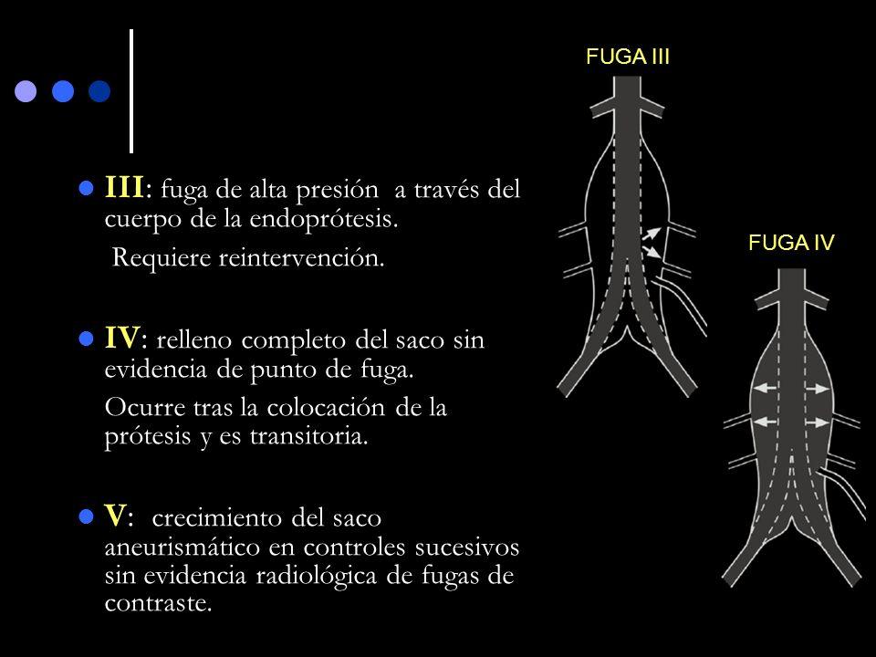 III: fuga de alta presión a través del cuerpo de la endoprótesis. Requiere reintervención. IV: relleno completo del saco sin evidencia de punto de fug