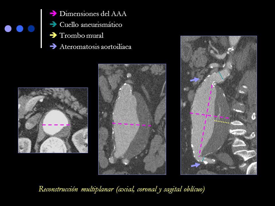 Aneurisma AAA infrarrenal con angulación de su cuello e importante ateromatosis ilíaca EVAR contraindicada Reconstrucciones volumétricas (VR)