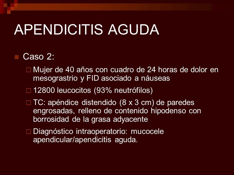 ENFERMEDAD INFLAMATORIA INTESTINAL (EII) Crohn: Afectación extensa de colon derecho e ID Engrosamiento: Media: 11-13 mm Segmentario (> borde mesentérico) Signo del halo menos frecuente Realce homogéneo de pared si no edema Proliferación de grasa mesentérica Adenopatías mesentéricas (inespecíficas) Colitis ulcerosa Colon izquierdo/difuso (raro sólo colon derecho) Engrosamiento: Media: 7,8 mm Difuso y simétrico Signo del halo más frecuente Realce no homogéneo No proliferación No frecuentes adenopatías