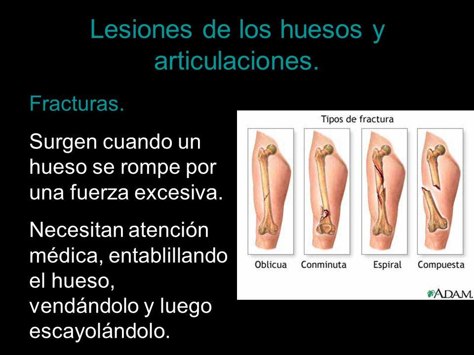 Lesiones de los huesos y articulaciones. Fracturas. Surgen cuando un hueso se rompe por una fuerza excesiva. Necesitan atención médica, entablillando