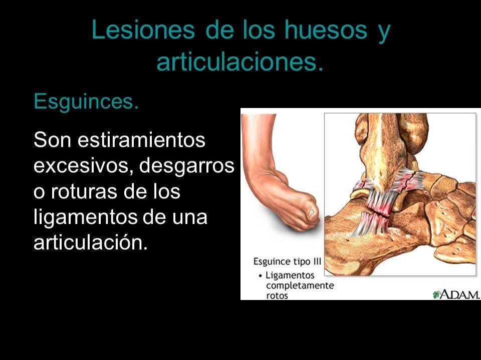 Esguinces. Son estiramientos excesivos, desgarros o roturas de los ligamentos de una articulación.