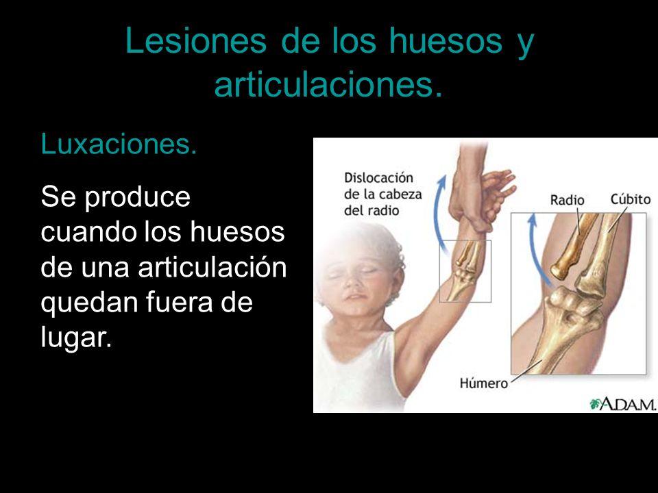 Lesiones de los huesos y articulaciones. Luxaciones. Se produce cuando los huesos de una articulación quedan fuera de lugar.