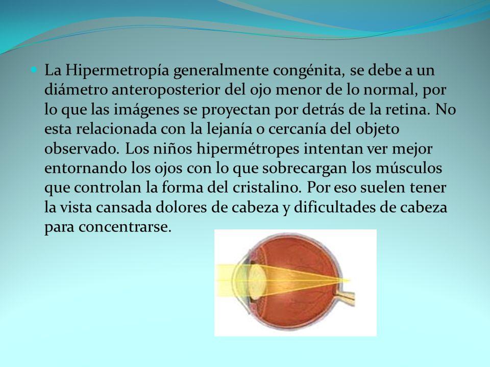 La Hipermetropía generalmente congénita, se debe a un diámetro anteroposterior del ojo menor de lo normal, por lo que las imágenes se proyectan por de