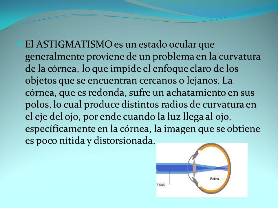 El ASTIGMATISMO es un estado ocular que generalmente proviene de un problema en la curvatura de la córnea, lo que impide el enfoque claro de los objet