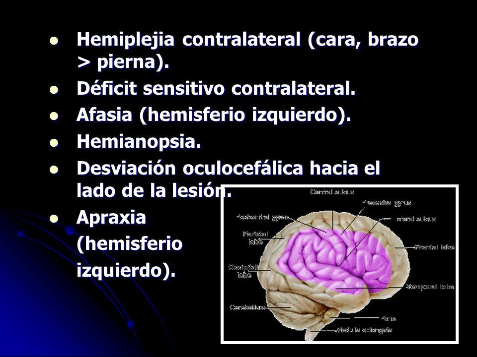 Hemiplejia contralateral (cara, brazo > pierna). Hemiplejia contralateral (cara, brazo > pierna). Déficit sensitivo contralateral. Déficit sensitivo c