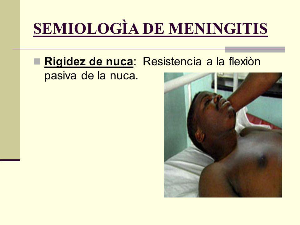 SEMIOLOGÌA DE MENINGITIS Signo de Brudzinski: Involucra flexiòn espontànea de las caderas y rodillas cuando el cuello es flexionado pasivamente.