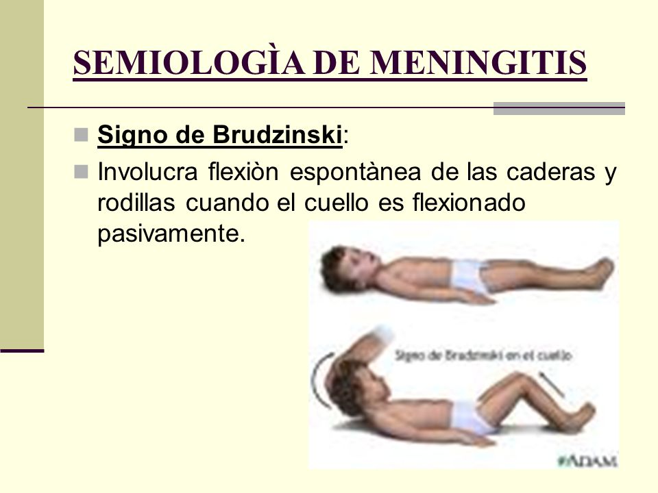 Signo de Kernig: Resistencia a la extensiòn pasiva de la pierna a nivel de la rodilla.