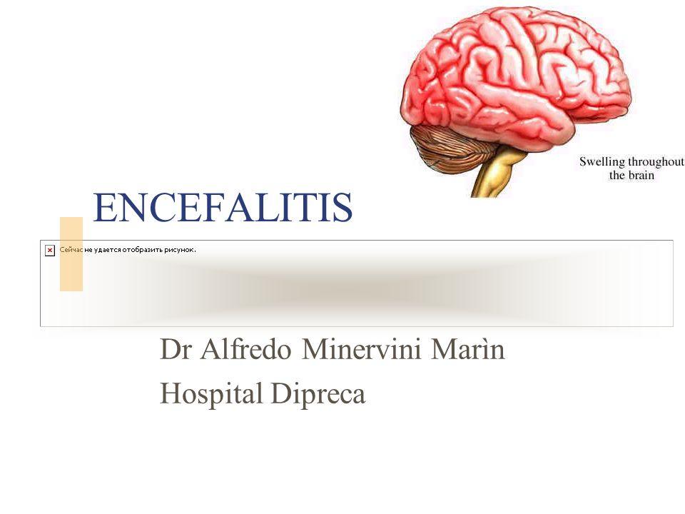 ENCEFALITIS Dr Alfredo Minervini Marìn Hospital Dipreca