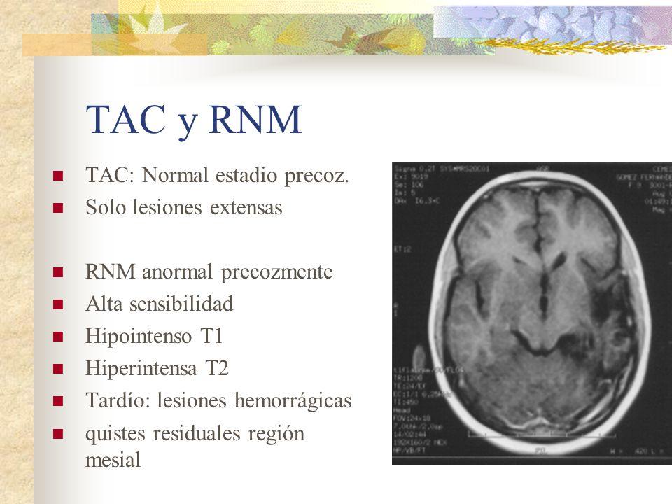 TAC y RNM TAC: Normal estadio precoz. Solo lesiones extensas RNM anormal precozmente Alta sensibilidad Hipointenso T1 Hiperintensa T2 Tardío: lesiones