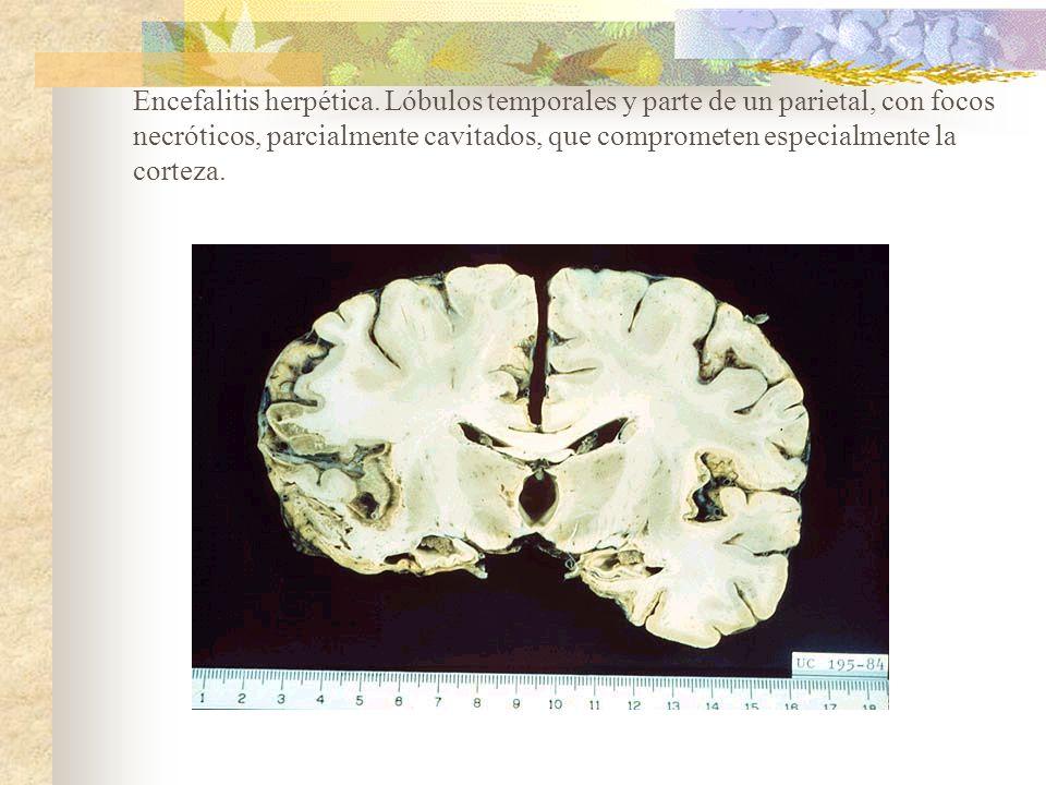Encefalitis herpética. Lóbulos temporales y parte de un parietal, con focos necróticos, parcialmente cavitados, que comprometen especialmente la corte