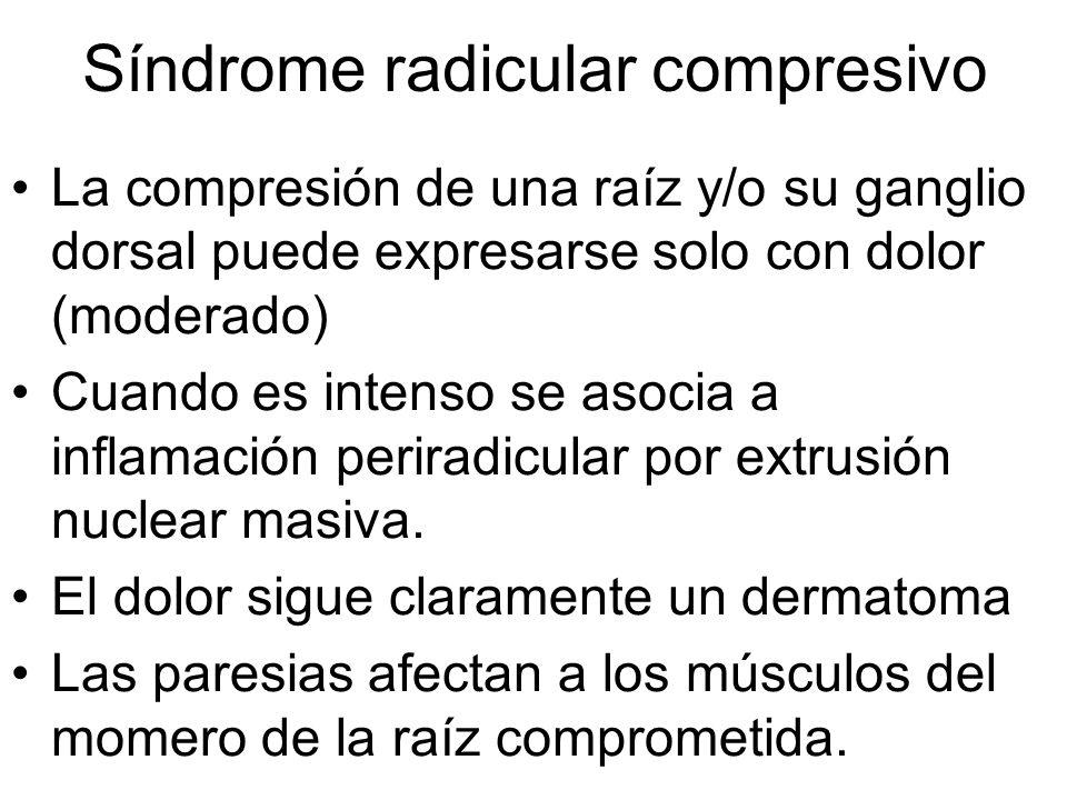 La compresión de una raíz y/o su ganglio dorsal puede expresarse solo con dolor (moderado) Cuando es intenso se asocia a inflamación periradicular por