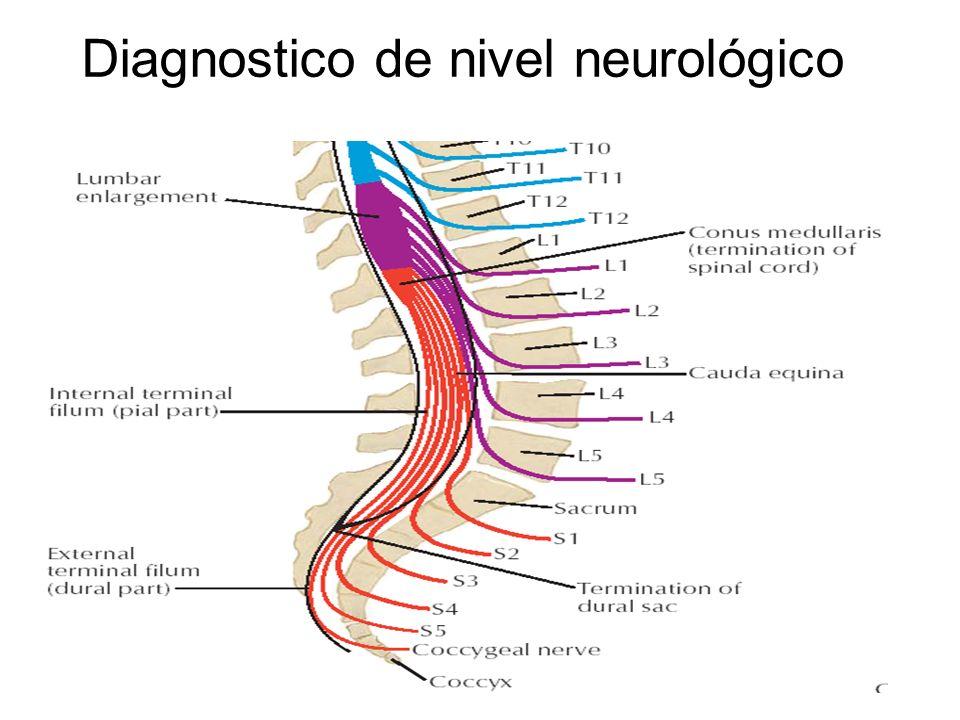 Diagnostico de nivel neurológico