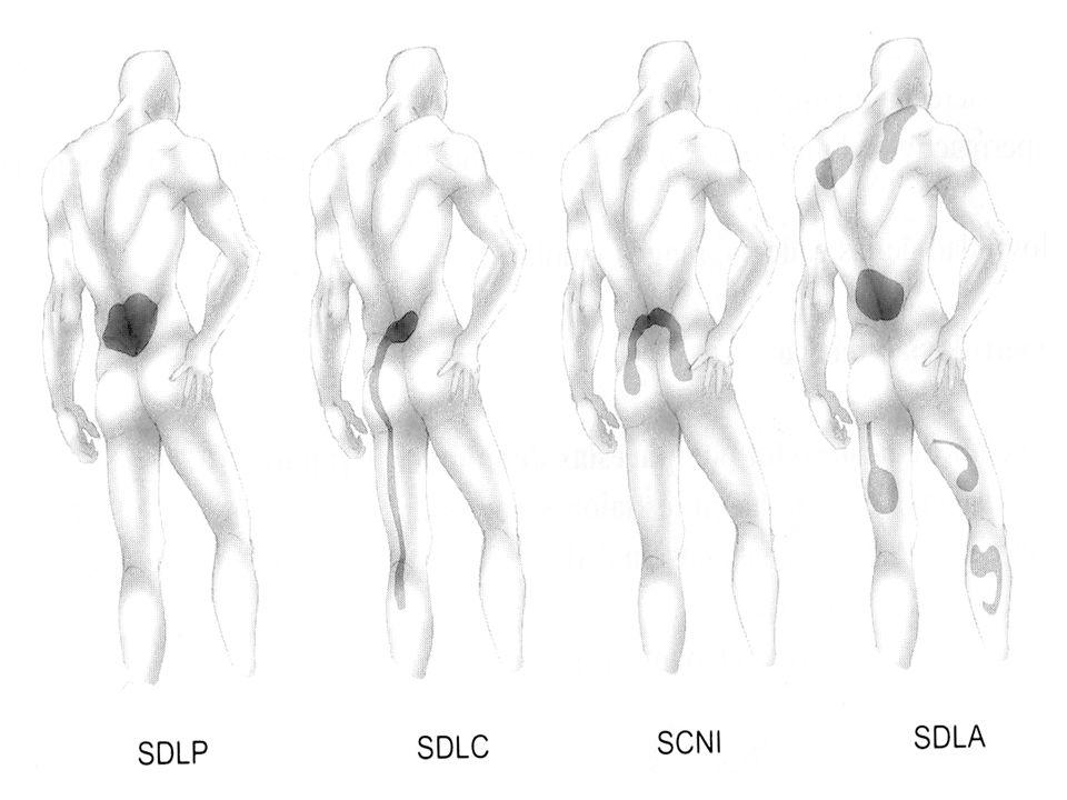 Localizado en zona lumbar, de tipo axial o paravertebral, uni o bilateral, en franja o cinturón, puede tener una irradiación a sacroiliacas o glúteos no sobrepasando su pliegue distal Se asocia a contractura muscular y rigidez vertebral Síndrome lumbar puro