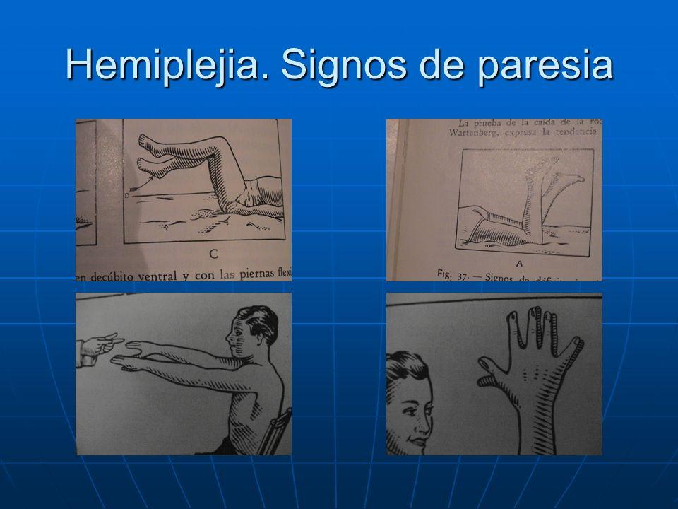 Hemiplejia. Signos de paresia