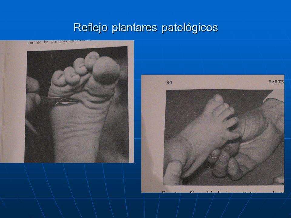 Reflejo plantares patológicos