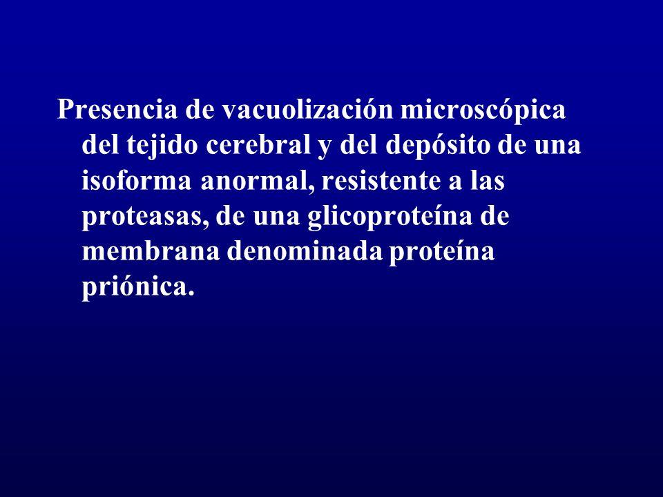 Presencia de vacuolización microscópica del tejido cerebral y del depósito de una isoforma anormal, resistente a las proteasas, de una glicoproteína d