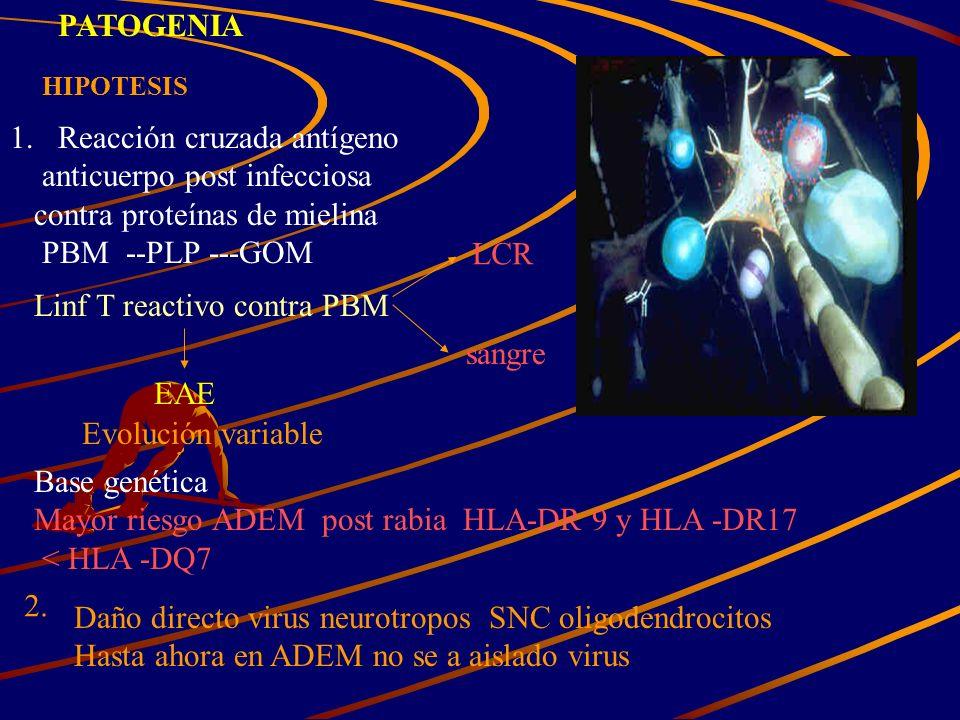 PATOGENIA HIPOTESIS 1.Reacción cruzada antígeno anticuerpo post infecciosa contra proteínas de mielina PBM --PLP ---GOM Linf T reactivo contra PBM EAE