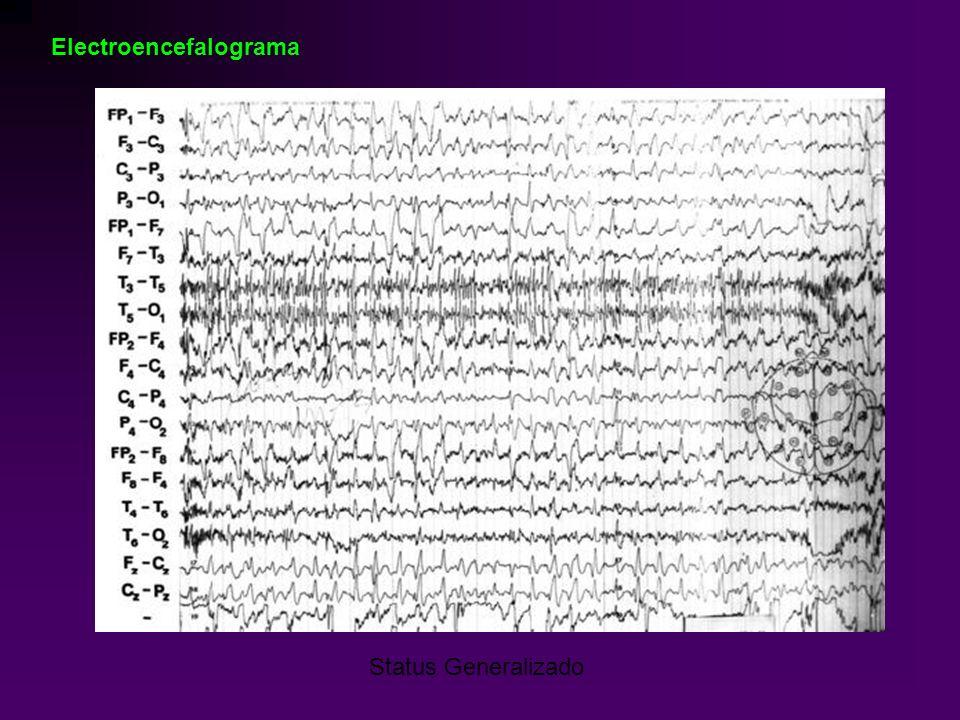 Status Generalizado Electroencefalograma