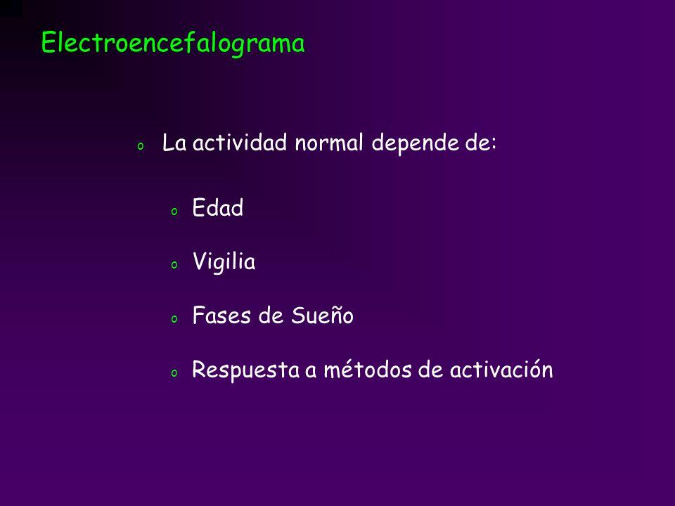 Vigilia Electroencefalograma