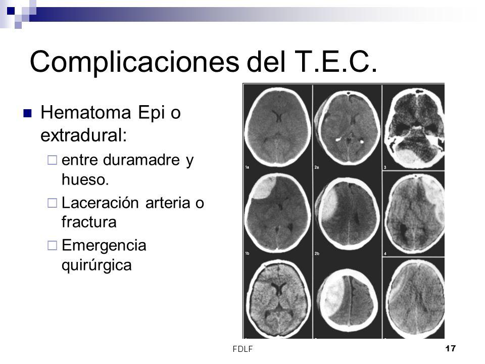 FDLF17 Complicaciones del T.E.C. Hematoma Epi o extradural: entre duramadre y hueso. Laceración arteria o fractura Emergencia quirúrgica