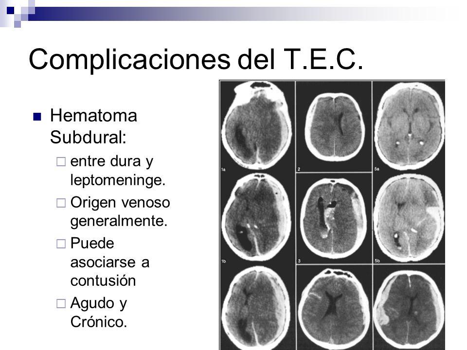 FDLF18 Complicaciones del T.E.C. Hematoma Subdural: entre dura y leptomeninge. Origen venoso generalmente. Puede asociarse a contusión Agudo y Crónico