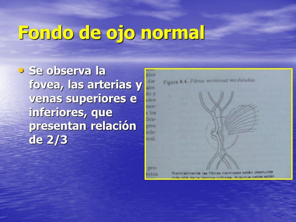 Fondo de ojo normal Se observa la fovea, las arterias y venas superiores e inferiores, que presentan relación de 2/3 Se observa la fovea, las arterias