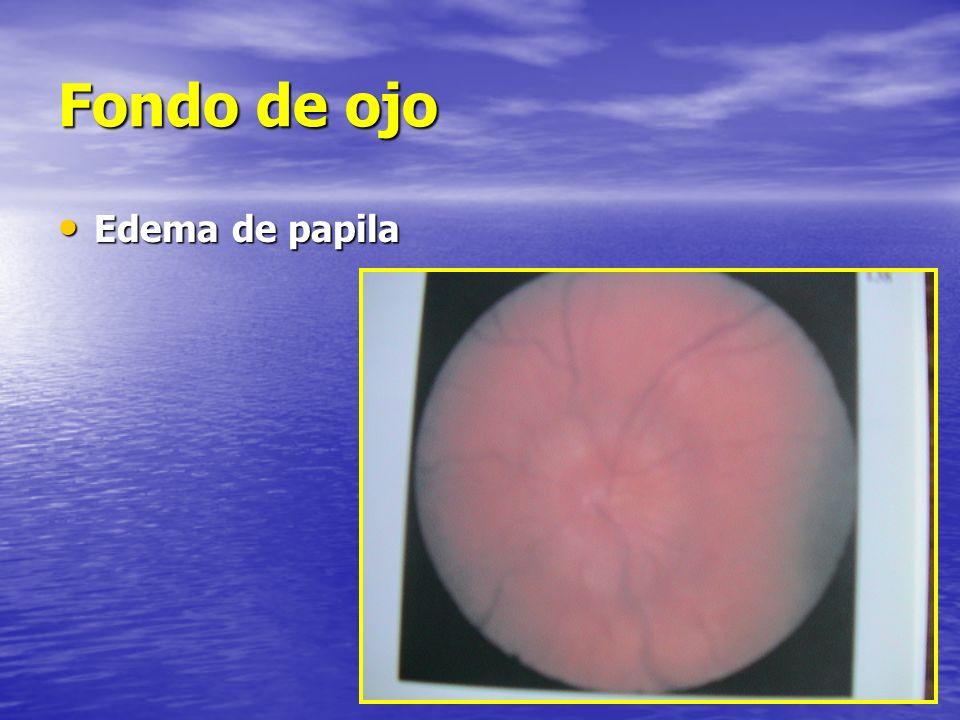 Fondo de ojo Edema de papila Edema de papila