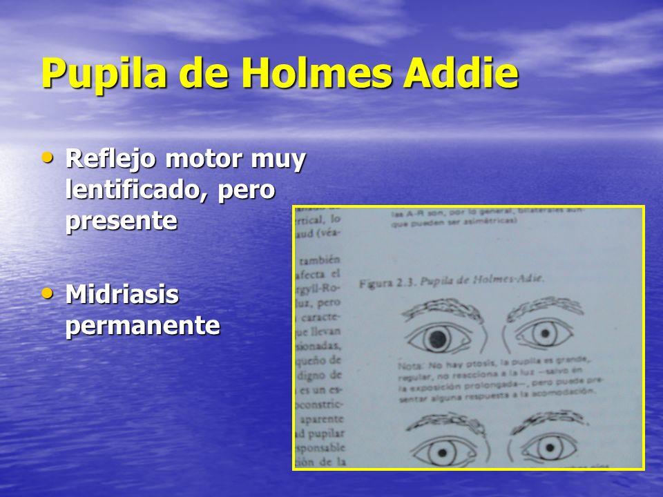 Pupila de Holmes Addie Reflejo motor muy lentificado, pero presente Reflejo motor muy lentificado, pero presente Midriasis permanente Midriasis perman